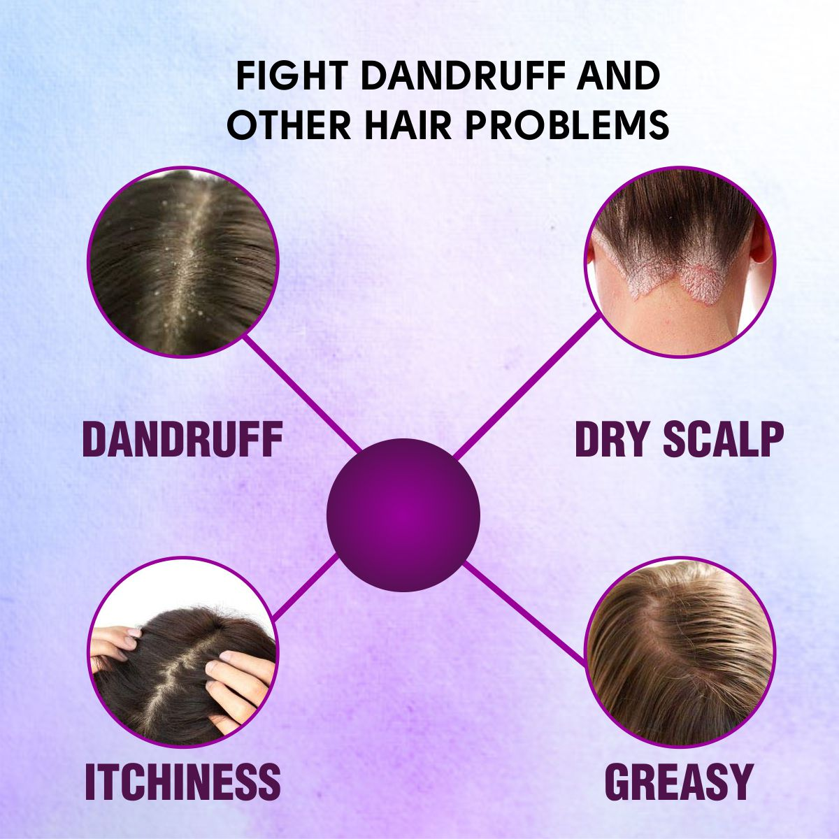 Onion Oil fight dandruff and other hair problem